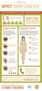 Skin Cancer Check
