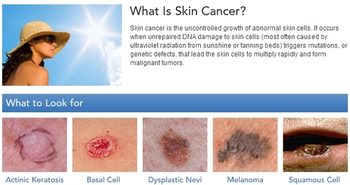 95c3466036b25 Skin Cancer Awareness Month  Get the Facts